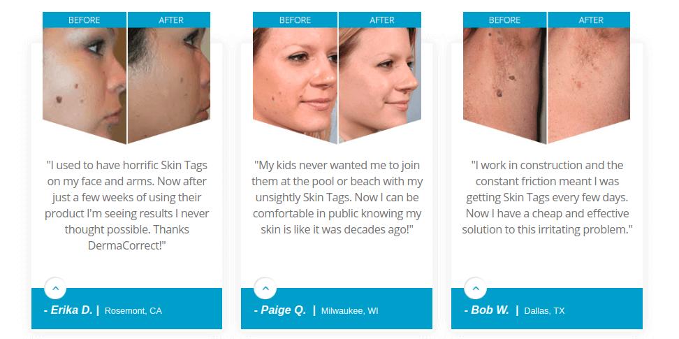 Derma Correct Customer Reviews